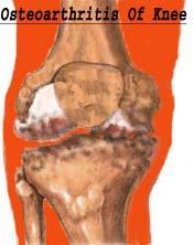 osteoarthritiskn_2