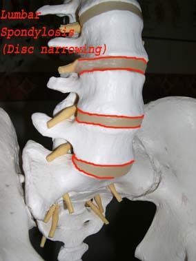 lumbarspondylosi